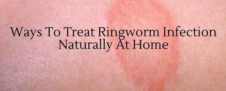 5 natural ways to treat ringworm