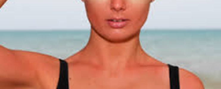 6 of the worst places to get sunburnt