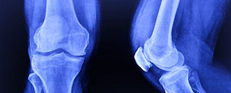 10 easy ways to protect your joints